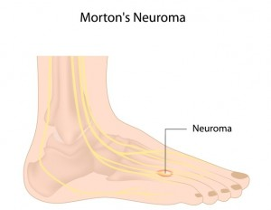 Morton's neuroma diagram