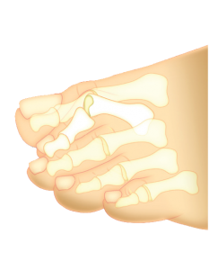 diagram of hammertoe