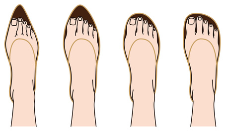 wearing tight shoes is a risk factor for Morton's neuroma