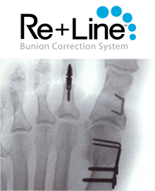 reline bunion correction surgery