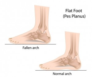 flat foot diagram