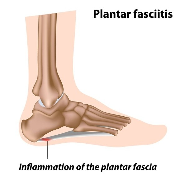 Plantar Fasciitis Diagram Extend Orthopedics