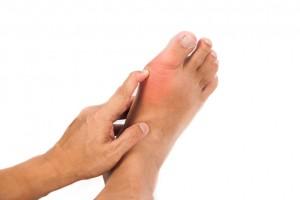 man with big toe joint arthritis
