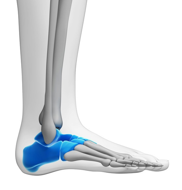 An overview of treatment for tarsal coalition